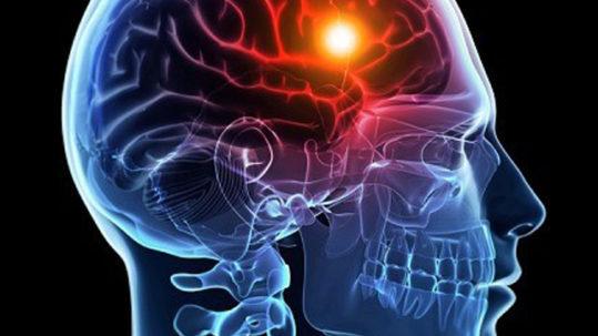 Accident Vasculaire Cérébral - Prévenir et Informer grâce à nos conseils